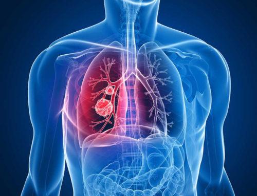 Što je rak pluća?