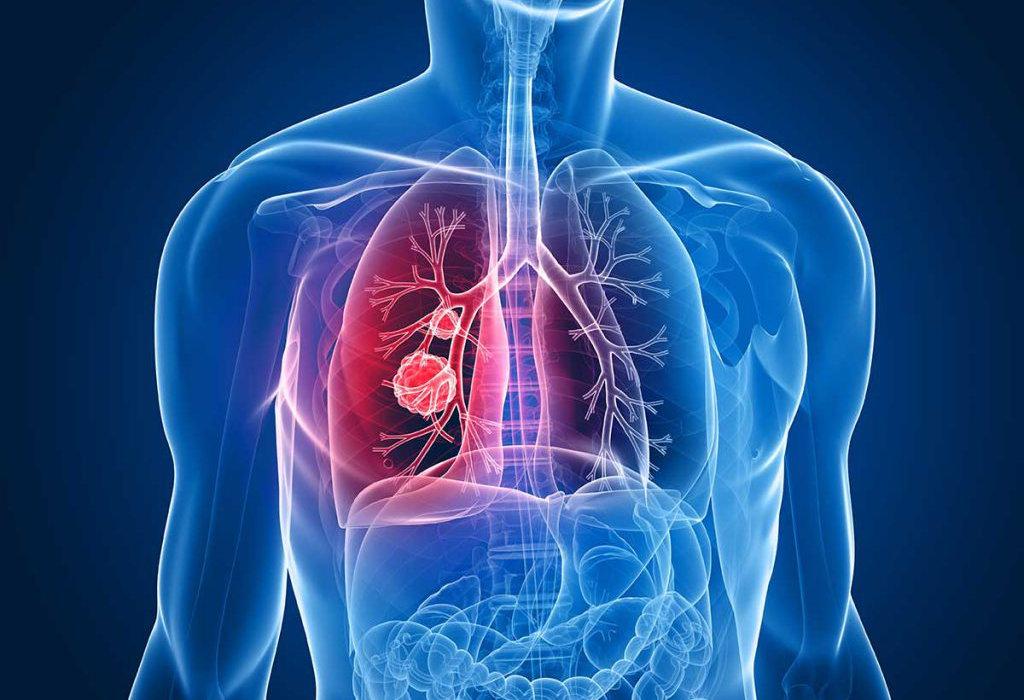 Što je rak pluća? – Hrvatska kuća disanja